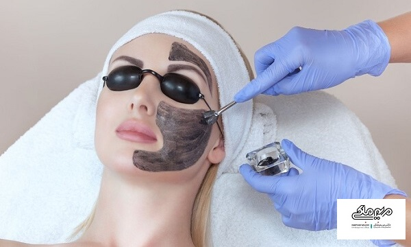 مالیدن ماده سیاه کربن بر روی پوست قبل از انجام لیزر کربن پیل