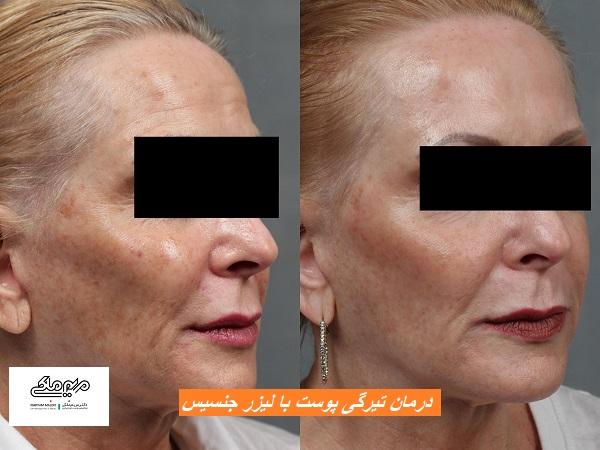 درمان تیرگی پوست با لیزر جنسیس