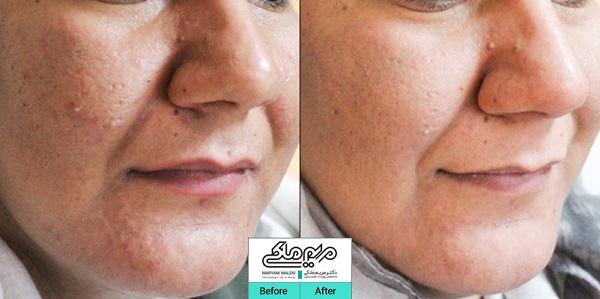 درمان و بستن منافذ باز پوست با لیزر جنسیس