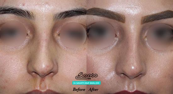 اصلاح فرم و نوک بینی با تزریق ژل