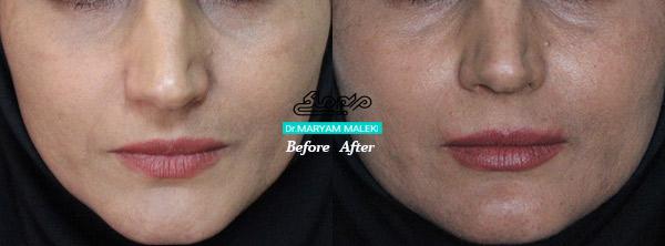 پر کردن صورت با تزریق ژل