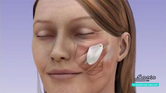 پرکردن صورت با پرتز از طریق جراحی
