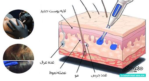 محل تزریق رنگدانه در لایه سطحی پوست (اپیدرم)