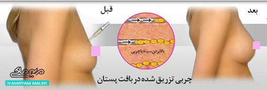 تزریق چربی به پستان