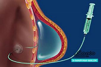 تزریق ژل به سینهها