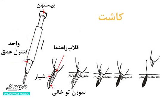 روش Stick and Place