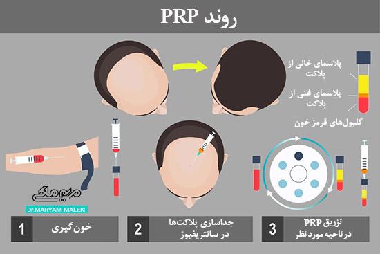 روند PRP