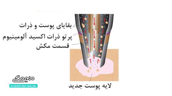 میکرودرمابریژن کریستالی