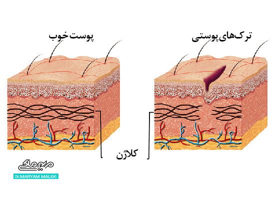 تفاوت پوست خوب با پوستی با ترکهای پوستی