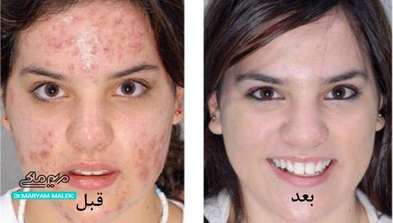 قبل و بعد درمان جوش های درمان ناپذیر