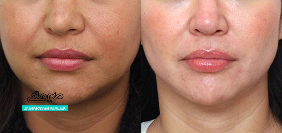 بوکال فت قبل و بعد از عمل