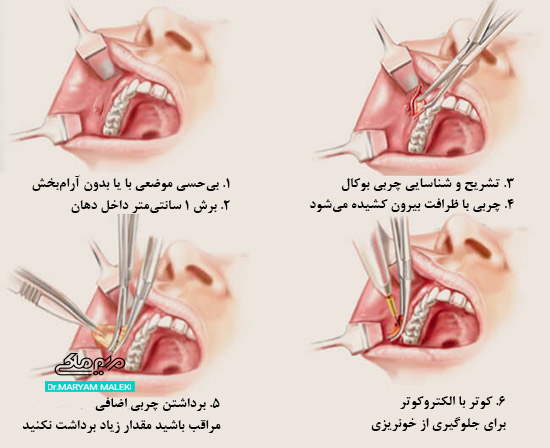 روش عمل جراحی بوکال فت