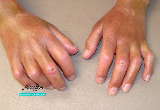 فرم منتشر Diffusc cutaneous systemic sclerosis
