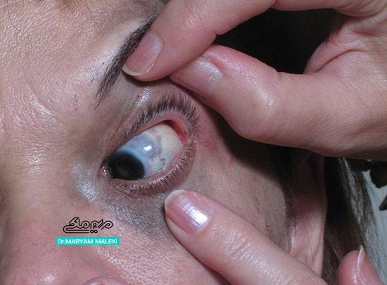 ملانوسیتوز چشمی