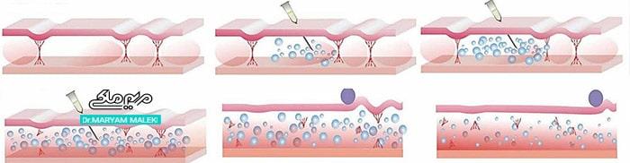 مکانیسم کربوکسی تراپی برای سلولیت
