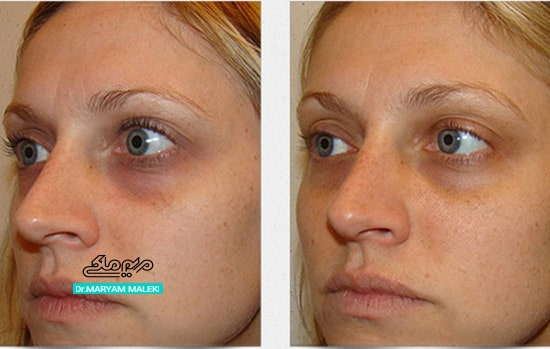 کربوکسی تراپی برای درمان تیرگی زیر چشم ها
