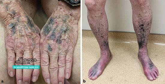 تغییرات رنگدانه در پوست بدنبال مصرف ماینوسایکلین